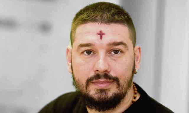 Еве што велат докторите и научниците за крвавиот крст на челото на Ненад Пауновиќ