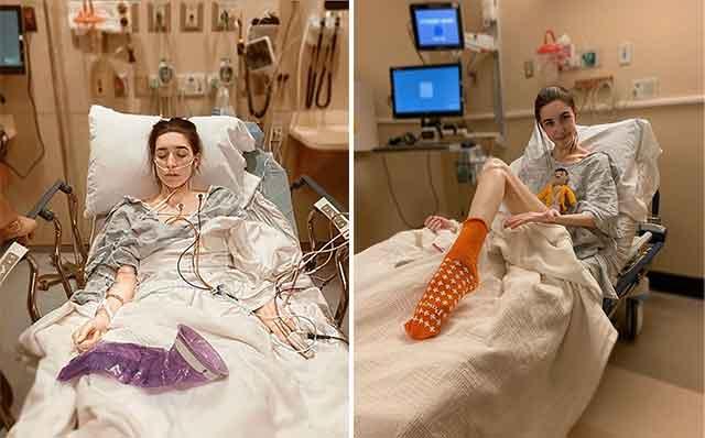 """Девојка гледајќи """"Вовед во анатомија"""" сфатила дека нема анopексија туку ретка стомачна болест"""